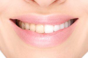teeth whitening treatments in Bowling Green
